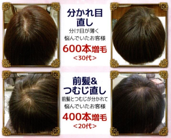 3D増毛の施術例