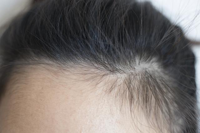 気になる髪の生え際